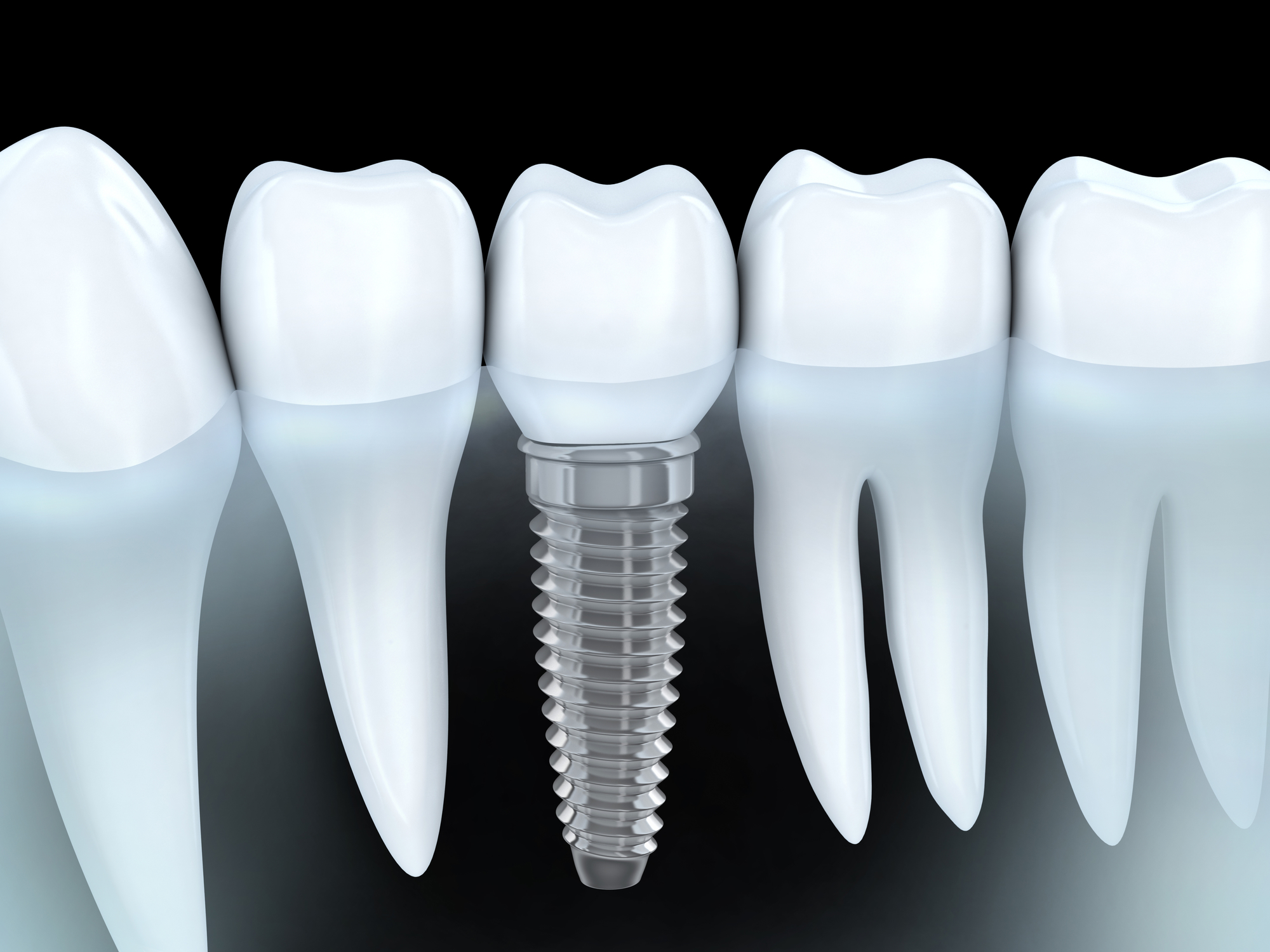 tooth screw