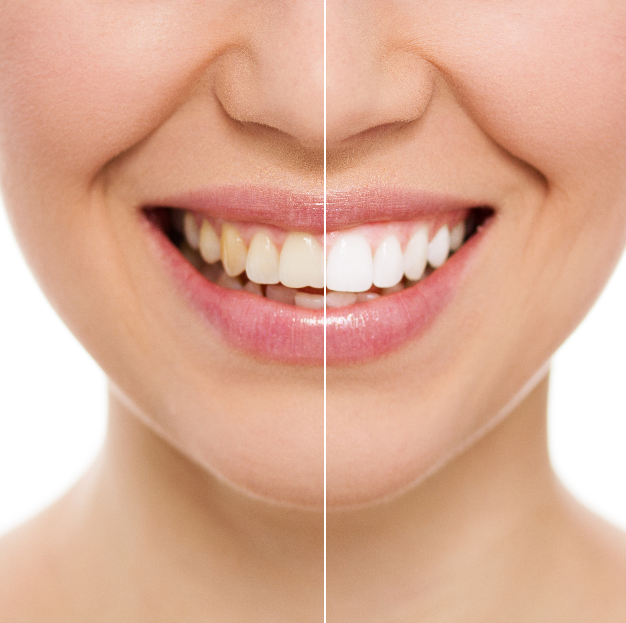 woman-smiling-after-whitening-teeth